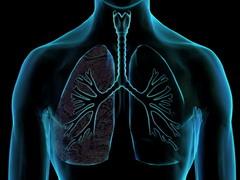 Mesterséges tüdő